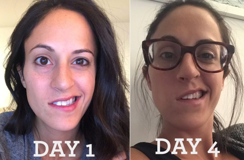 Bell's Palsy - How I Healed Naturally and What I Learned From It